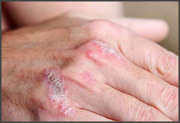 Psoriasis on knuckles pictures
