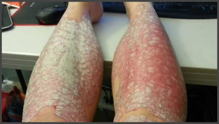 psoriasis on lower legs pictures