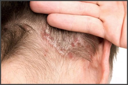 psoriasis on neck pictures