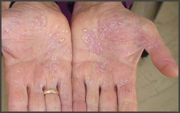Psoriasis on palms pictures