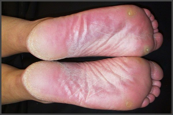 Psoriasis on the foot pictures