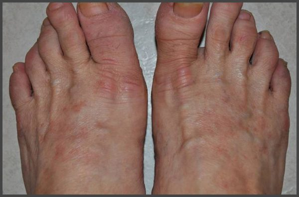 psoriasis on top of feet pictures