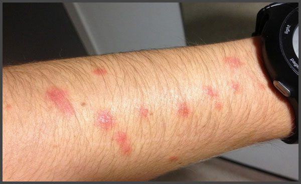 Psoriasis pictures on arms
