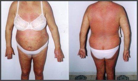 psoriasis pictures on body