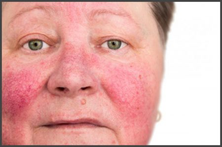 pustular psoriasis on face pictures
