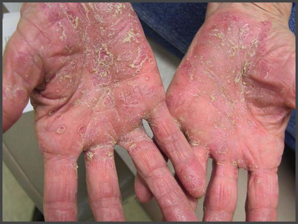 pustular psoriasis pictures hand