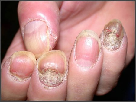 severe nail psoriasis pictures
