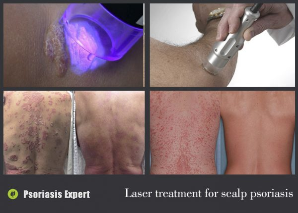 Laser treatment for psoriasis