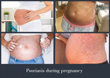 Psoriasis during pregnancy