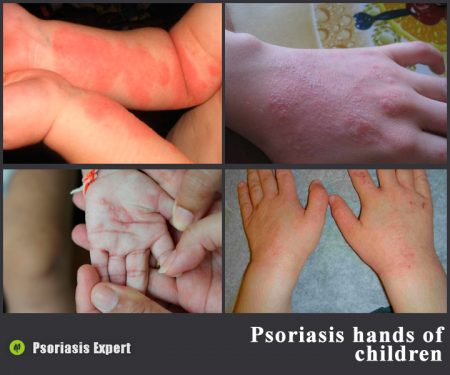 Psoriasis on the hands of children