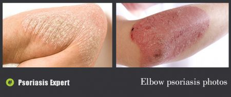 elbow psoriasis photos