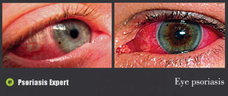 psoriatic eye manifestations