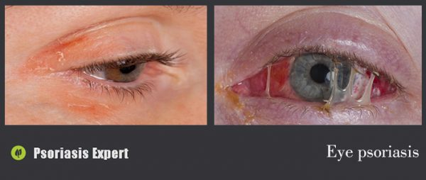 eye psoriasis