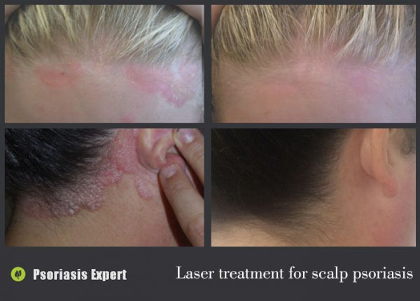 laser treatment for scalp psoriasis