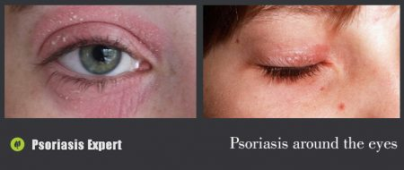 psoriasis around the eyes
