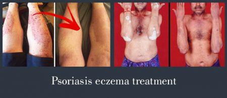 psoriasis eczema treatment
