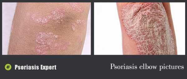 psoriasis elbow pictures