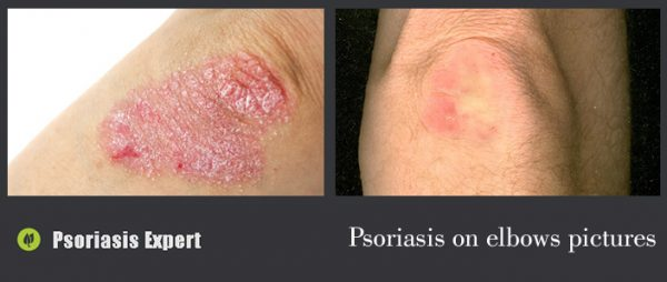 psoriasis on elbows pictures