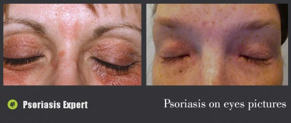 psoriasis on eyes pictures