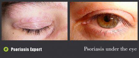 psoriasis under the eye