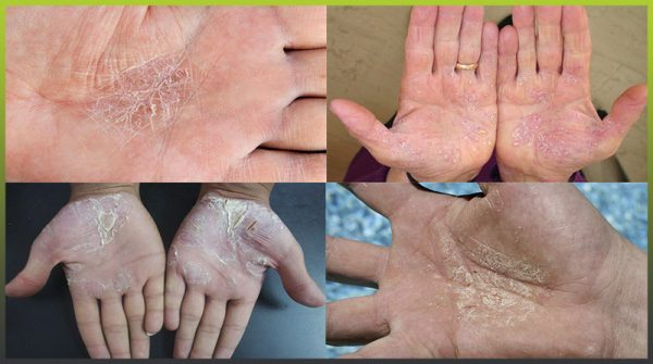 Psoriasis hands and palms