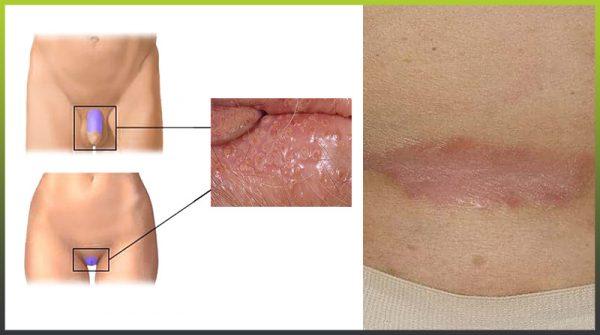 Symptoms of genital psoriasis