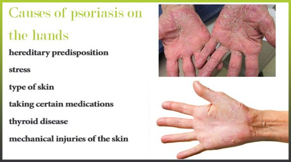 causes psoriasis hands